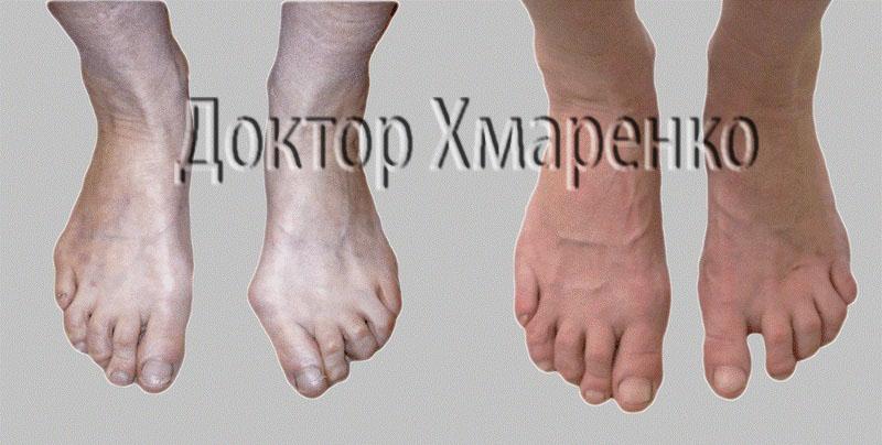 косточки на ногах операция