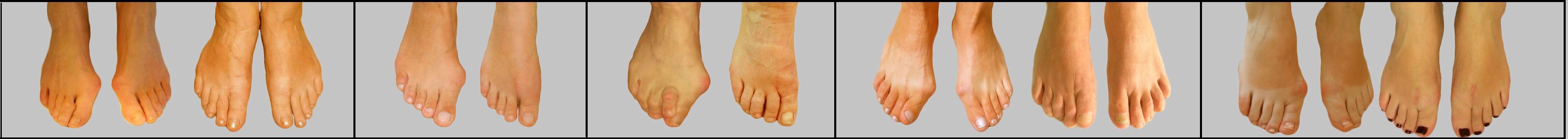 Фото косточка на ноге у большого пальца что делать