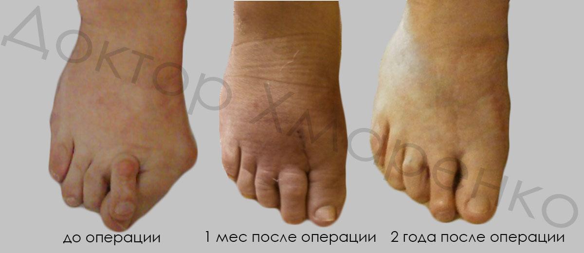 hallux valgus 3 степени, молоткообраная деформация 2-го пальца, метатарзалгии