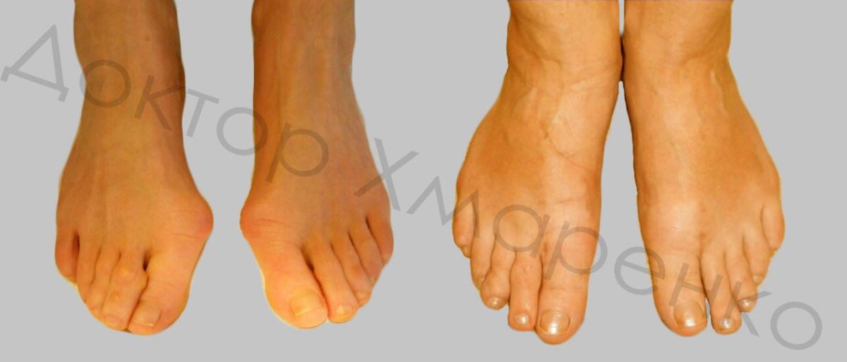 hallux valgus, молоткообразная деформация 2-го пальца правой стопы