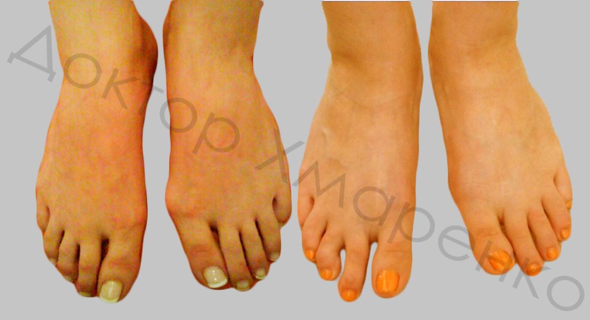 болезненные косточки на ногах