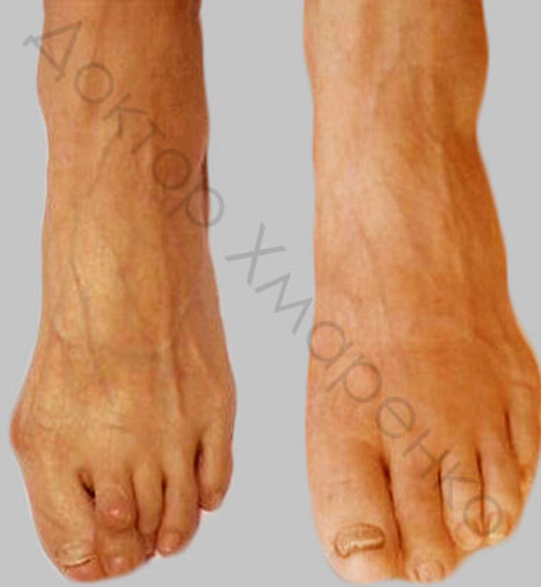 ревматоидный полиартрит, hallux valgus, молоткообразная деформация 2-го пальца