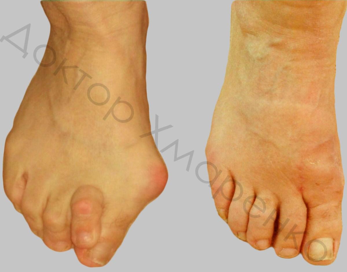 Удаление сустава из правого пальца стопы болезнь суставов ног у домашней птицы