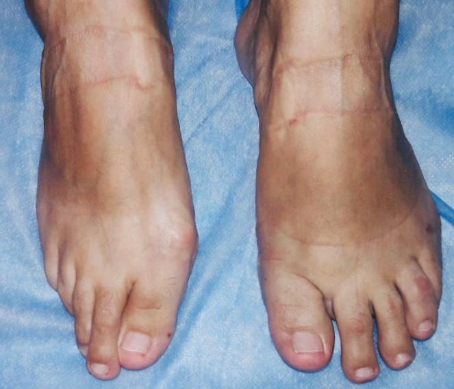 ревматоидный полиартрит после операции на левой ступне