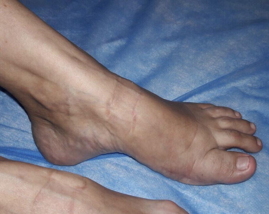 ревматоидный полиартрит после операции на правой ступне