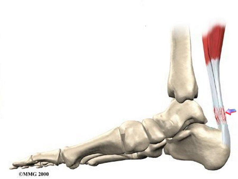 Механизм повреждения ахиллова сухожилия