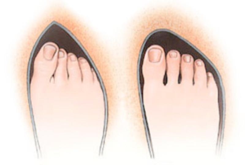 Удаление косточек на ногах лазером - сколько стоит ...
