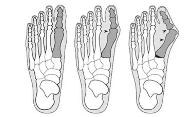 удаление косточки на ногах