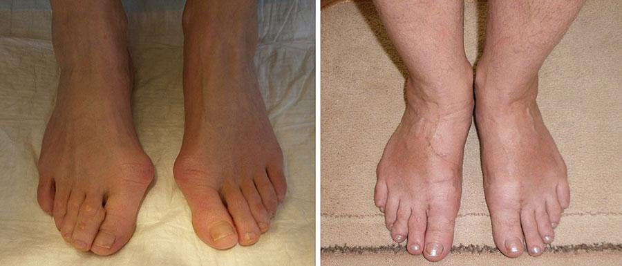 Как убрать косточку на ноге у большего пальца?