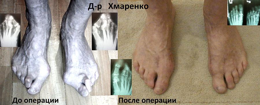 Когда делать перевязку после удаления вен на ногах