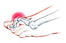 Молоткообразная деформация пальцев ног