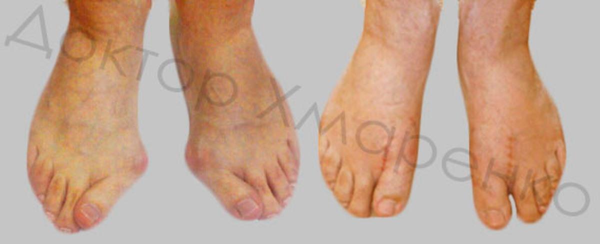 деформация пальцев стоп