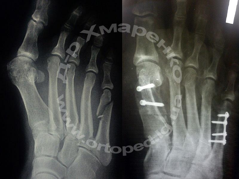 субкапитальный перелом, вальгусная деформация 1-го пальца правой стопы