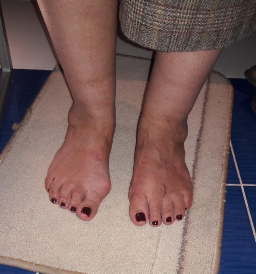 сложный вальгус стоп у женщины с деформациями переднего и заднего отдела после операции